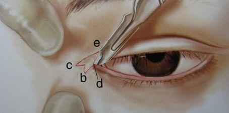 开眼角手术怎么样,好不好