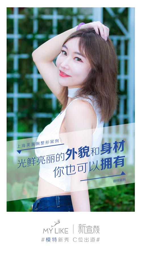上海美莱新宣颜|胸部整形模特0元案例招募
