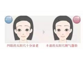 上海做自体脂肪丰太阳穴的效果如何
