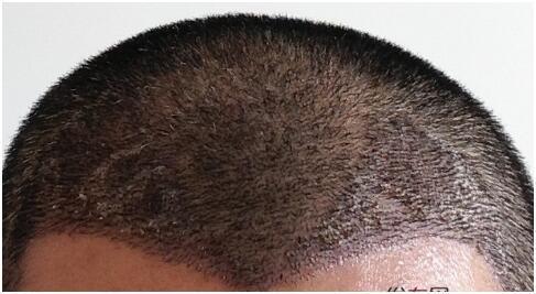 发际线植发多少钱
