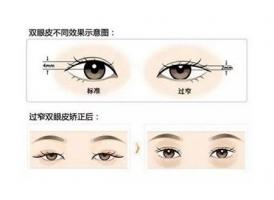 双眼皮修复时间更佳更合适是什么时候