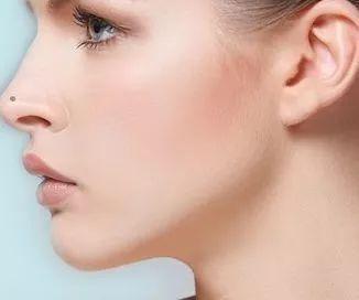 隆鼻失败修复多久取出假体好,跟做隆鼻手术一样吗