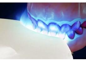 冷光牙齿美白可靠吗,有什么优势