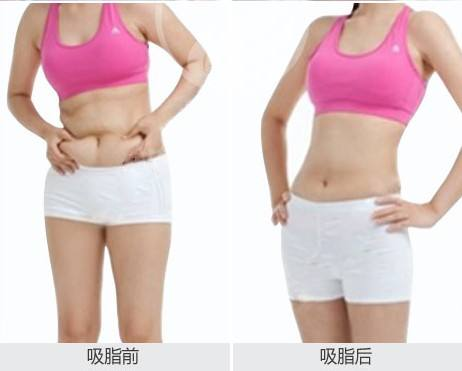 吸脂的费用在上海整形医院高不高