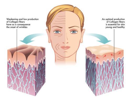 脸上皮肤松弛下垂怎么办,如何解决