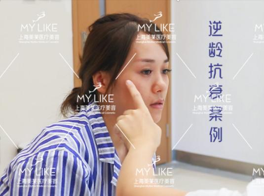 """上海美莱新宣颜""""逆龄抗衰""""案例0元招募"""