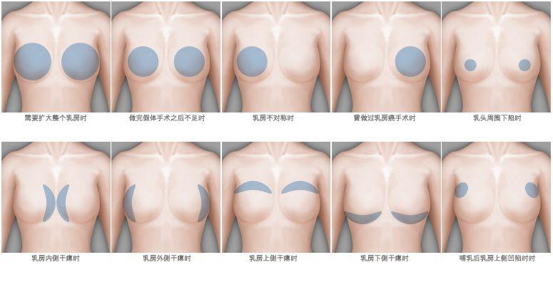 上海美莱医疗美容医院丰胸效果怎么样