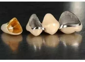 牙齿贴面和烤瓷牙都有哪些区别