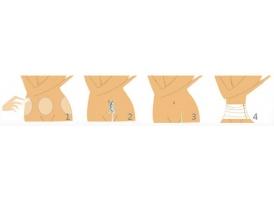做了腰部腹部吸脂手术多久可以恢复