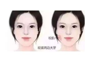 上海美容注射瘦脸针多久见效