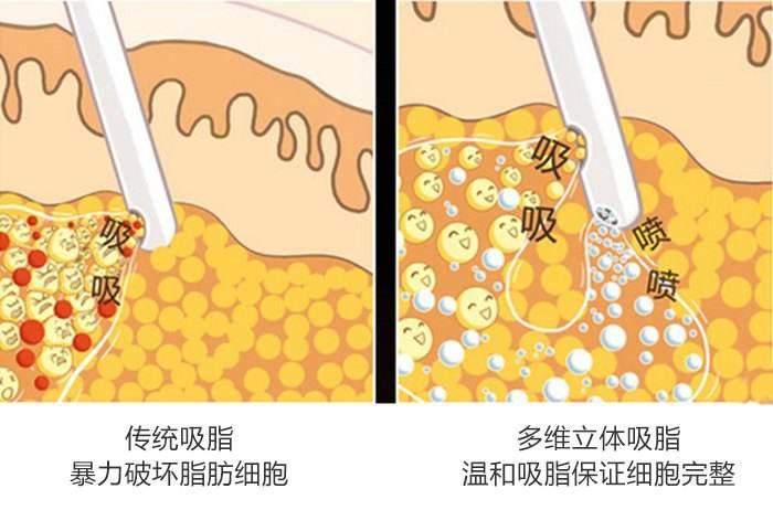 上海做完面部吸脂后需要多久恢复