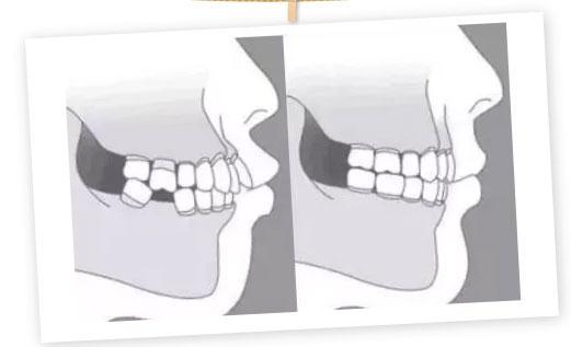 上海美莱做矫正牙齿需要拔牙齿吗