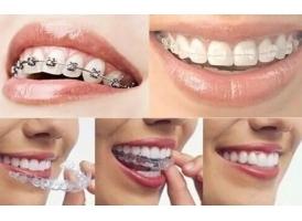 矫正牙齿大概多少钱