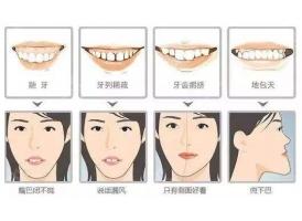 上海牙科做牙齿矫正价格多少钱