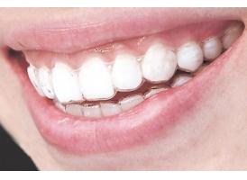 上海做矫正牙齿的危害有哪些