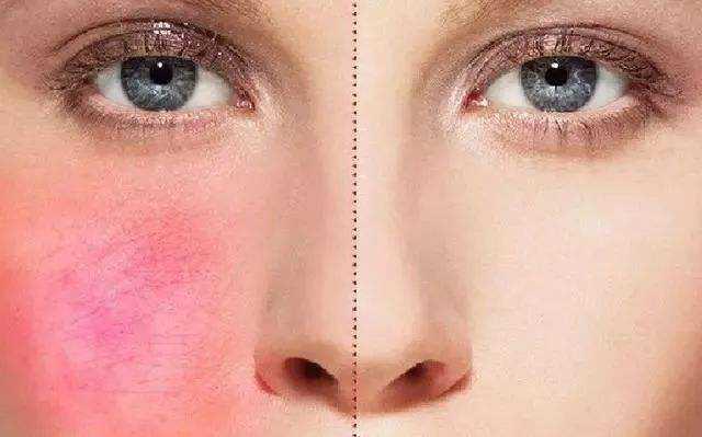 皮肤过敏红痒怎么办,如何解决呢