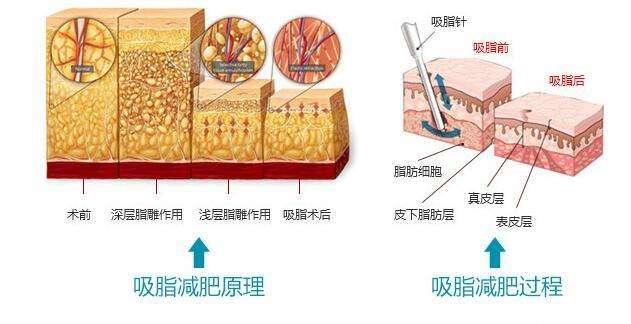 上海吸脂医院做腰腹环吸整形术费用一般是多少