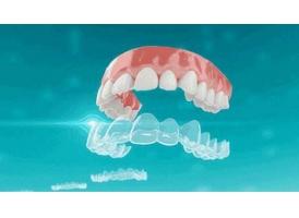 做个隐形牙齿矫正器多少钱