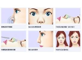 上海隆鼻哪个方式比较好