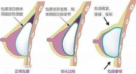 上海隆胸手术价位高不高