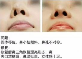肋骨鼻修复注意什么