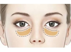 上海美莱周年庆去眼袋手术报价