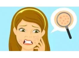 面部毛孔粗大的原因都有哪些