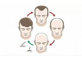 植发一般要多少钱