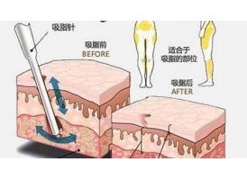 上海做抽脂减肥疼吗