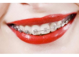 20岁矫正牙齿的利与弊