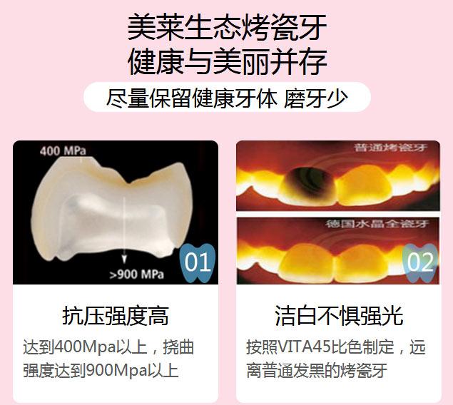 一颗烤瓷牙价钱上海一般价格是多少