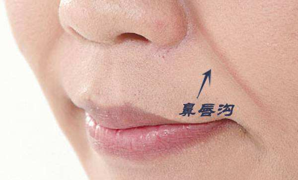 鼻唇沟太深应该怎么办