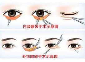 做医美手术祛眼袋的优势有什么
