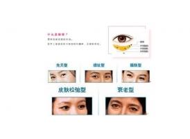 眼袋怎么消除,上海美莱好的方法