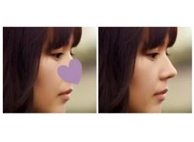 上海美莱鼻整形效果好吗,这些问题你且知道!