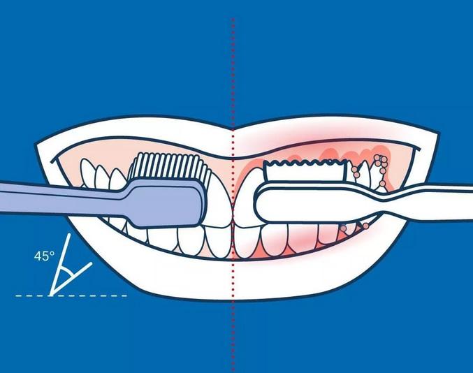 上海美莱口腔,刷牙的错误动作90%人每天都在做