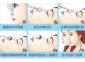 上海美莱医生: 隆鼻假体取出后鼻子会变形吗