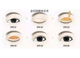 上海一般做眼部整形手术多少钱