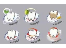 【周茹讲述】 洗牙到底安不安全