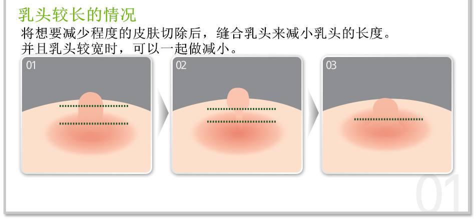 上海美莱陈斌:乳头内陷可以通过整形矫正吗