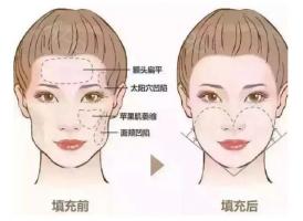 【上海美莱吸脂袁玉坤】什么样的脸看上去更年轻紧致