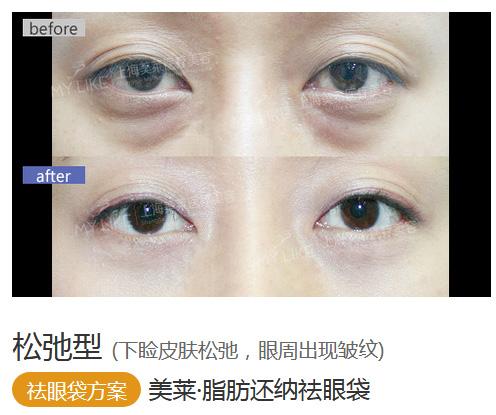 去眼袋价目表上海一般是多少钱