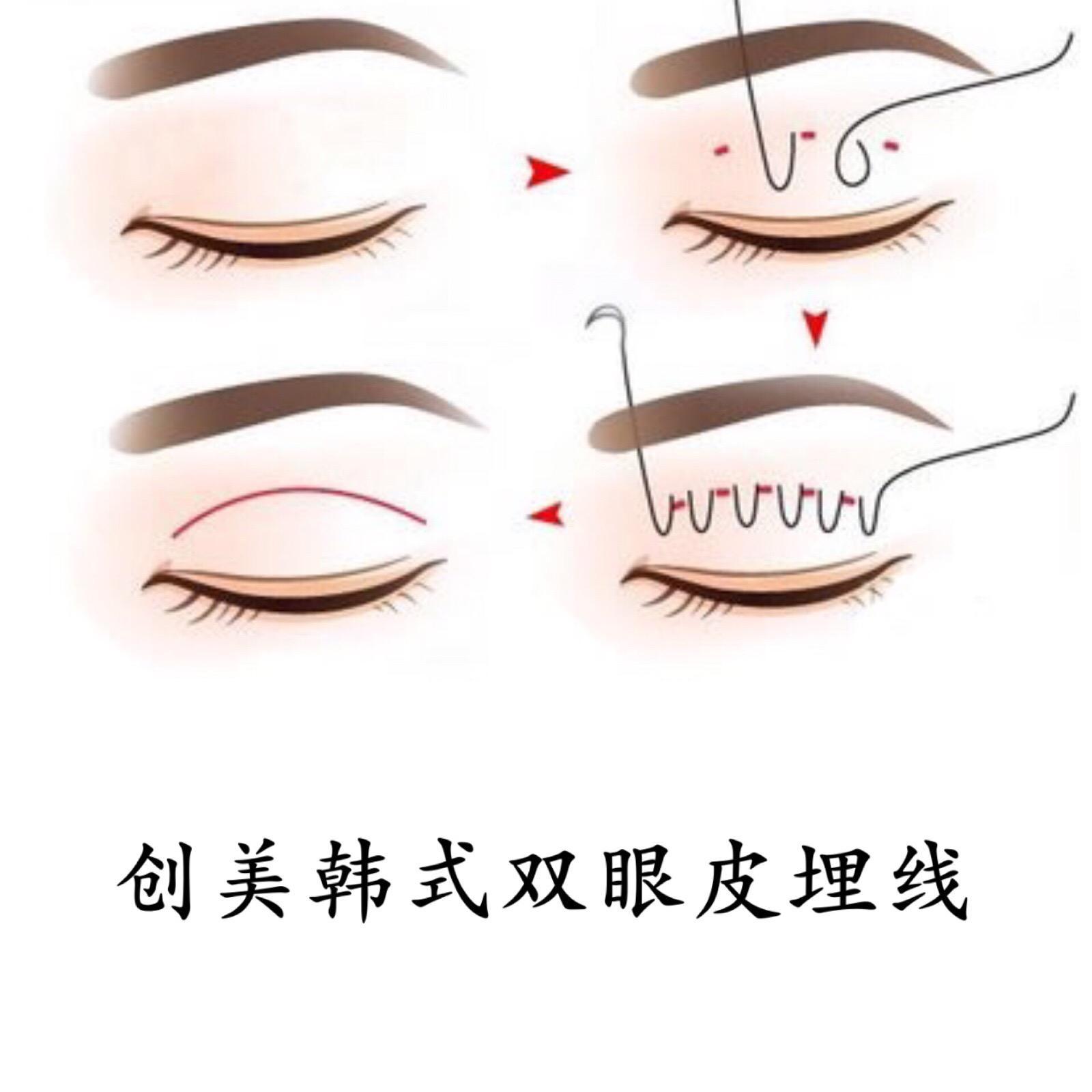 上海眼部埋线美莱怎么样