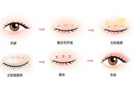 上海美莱杜园园:双眼皮修复难度大不大