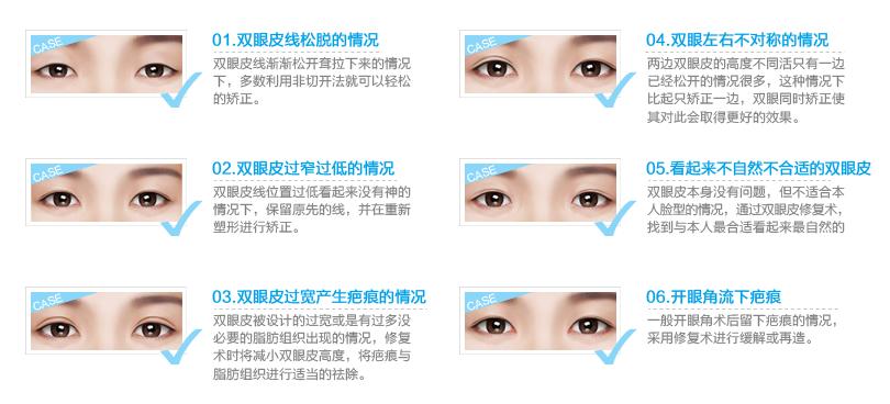 上海美莱医生为你解答:双眼皮修复难度大不大