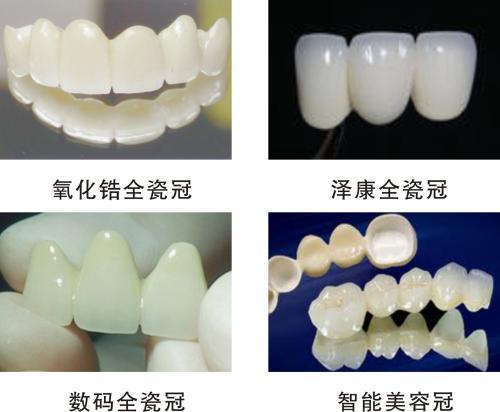 美容冠一颗牙齿多少钱