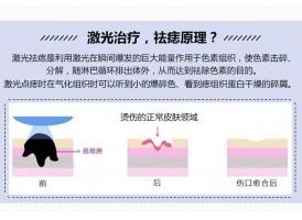 上海做激光除痣价格是多少