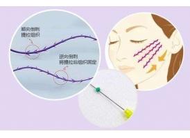 上海蛋白线面部提升可以保持多久