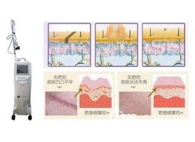 上海做激光祛疤的价钱贵不贵