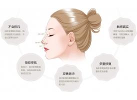 上海做自体软骨隆鼻优点